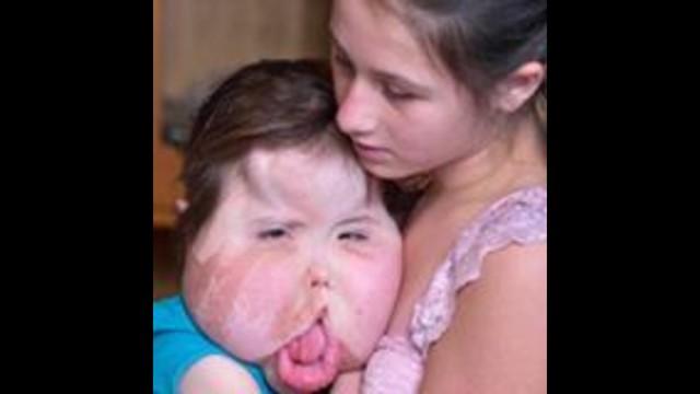 Image Result For Syndrome De Cloves